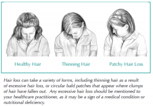 Comparison of healthy and thinning hair